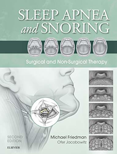 Sleep-apnea-and-snoring-surgical-and-non-surgical-therapy