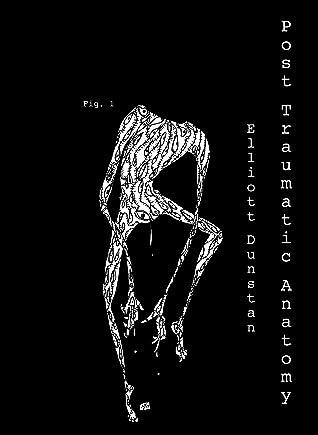 Post-Traumatic Anatomy
