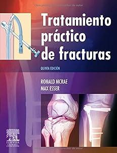 Tratamiento Practico De Fracturas