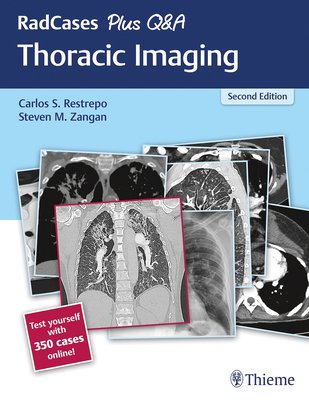 RadCases Plus Q Thoracic Imaging
