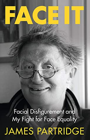 Face it: facial disfigurement and my fight for Face Equality in CityLibrary Search.
