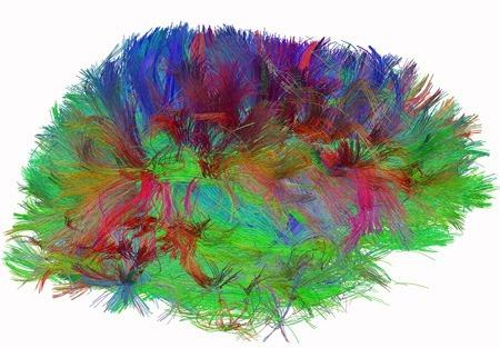 Human Brain Wiring