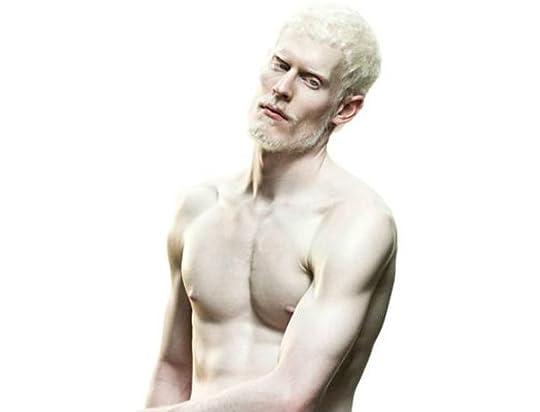 Albinos nude