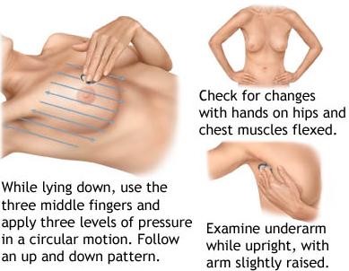 lump move breast