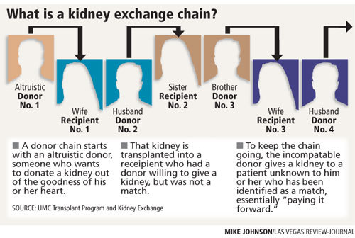kidney exchange chain