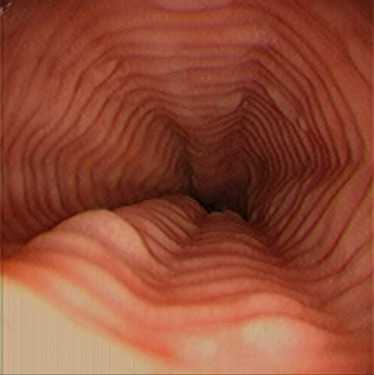 Felinization of Esophagus related to Acid Reflux Los Angeles Endo Fli