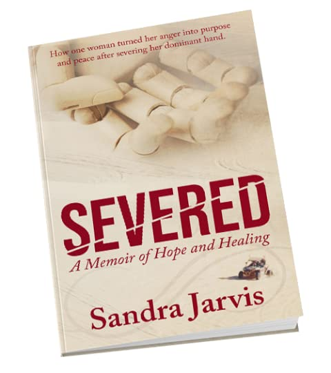 Severed a Memoir of Hope and Healing By Sandra Jarvis