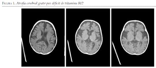 deficit de vit b12 pdf