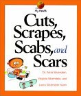 Cuts, Scrapes, Scabs, and Scars  by  Alvin Silverstein