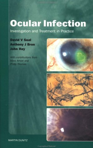 Ocular Infection: Investigation and Treatment in Practice  by  David V. Seal