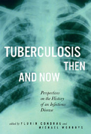 Tuberculosis Then and Now: Perspectives on the History of an Infectious Disease Flurin Condrau
