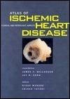Atlas of Ischemic Heart Disease  by  James T. Willerson