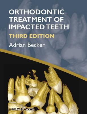 The Orthodontic Treatment of Impacted Teeth Adrian Becker