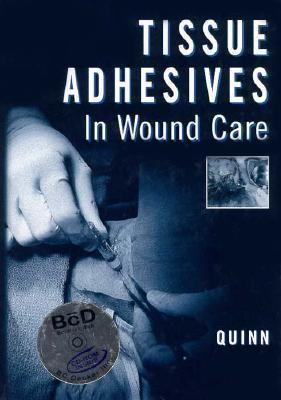 Tissue Adhesives In Wound Care (Book With Cd Rom) James V. Quinn