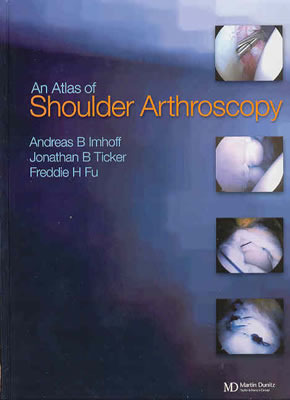 Atlas of Shoulder Arthroscopy [With CDROM]  by  Andreas B. Imhoff