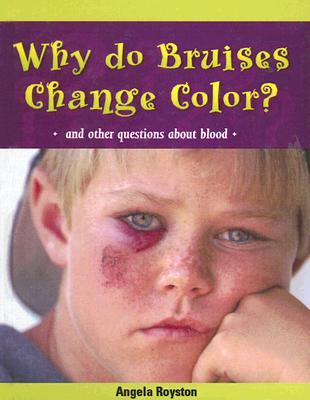 Why Do Bruises Change Color?: And Other Questions about Blood Angela Royston