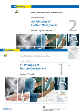 AO Image Collections: AO Principles of Fracture Management  by  Thomas P. Rüedi