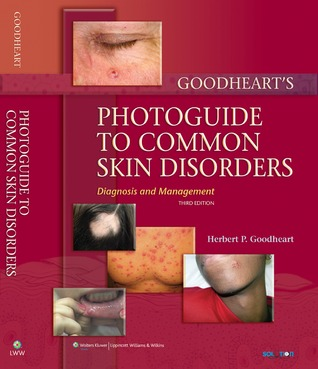 Goodhearts Same-Site Differential Diagnosis: A Rapid Method of Diagnosing and Treating Common Skin Disorders  by  Herbert P Goodheart