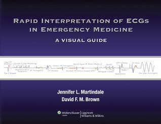 Rapid Interpretation of ECGs in Emergency Medicine: A Visual Guide Jennifer Martindale