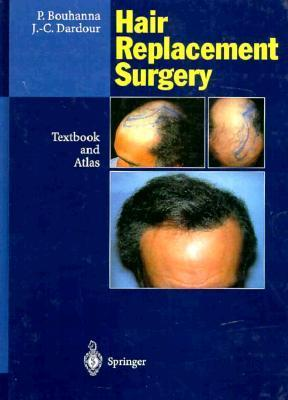Hair Replacement Surgery: Textbook and Atlas P. Bouhanna