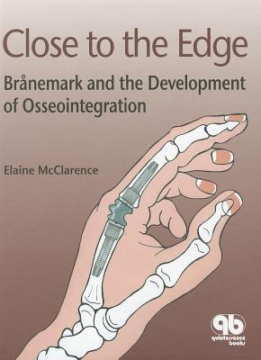 Close To The Edge: Branemark And The Development Of Osseointegration  by  Various