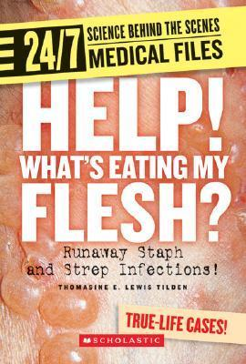 Help! Whats Eating My Flesh?: Runaway Staph and Strep Infections!  by  Thomasine E. Lewis Tilden