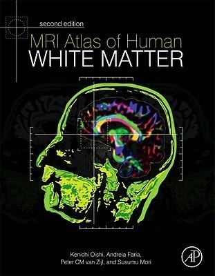 MRI Atlas of Human White Matter, Second Edition  by  Kenichi Oishi