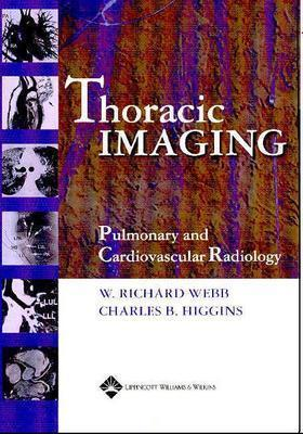 Fundamentals of Body CT: Expert Consult - Online and Print W. Richard Webb