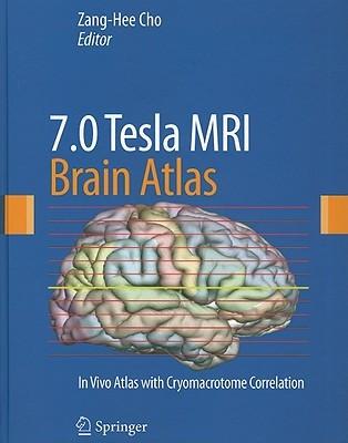 7.0 Tesla MRI Brain Atlas Zang Cho