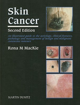 Skin Cancer: An Illustrated Guide To The Aetiology, Clinical Features, Pathology And Management Of Benign And Malignant Cutaneous Tumours Rona M. MacKie