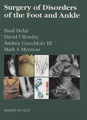 Surgery of Disorders of the Foot and Ankle  by  Basil Helal