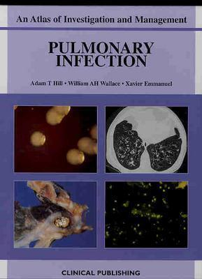 Pulmonary Infection: An Atlas of Investigation and Management Adam T. Hill