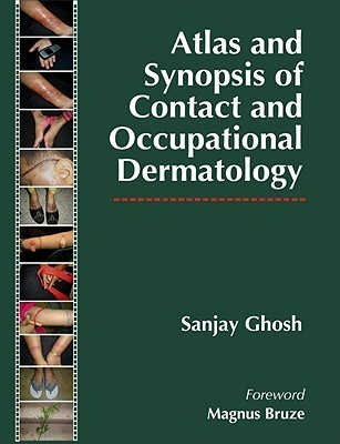 Atlas and Synopsis of Contact and Occupational Dermatology Ghosh Sanjay