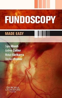 Fundoscopy Made Easy  by  Sujoy Ghosh