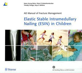 Elastic Stable Intramedullary Nailing (ESIN) in Children  by  Hans-Georg Dietz