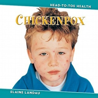 Chickenpox  by  Elaine Landau