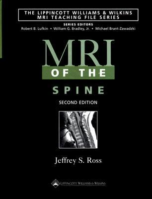MRI of the Spine  by  Jeffrey S. Ross