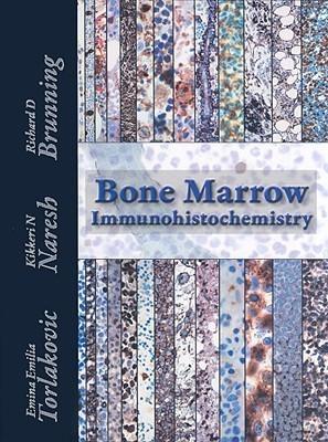 Bone Marrow Immunohistochemistry  by  Emina Emilia Torlakovic