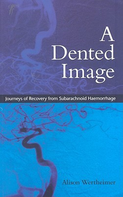 Dented Image  by  Alison Wertheimer