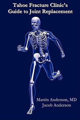 Tahoe Fracture Clinics Guide to Joint Replacement Martin Anderson
