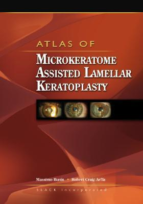 Atlas of Microkeratome Assisted Lamellar Keratoplasty  by  Massimo Busin