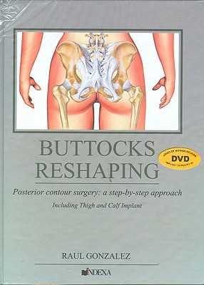 Buttocks Reshaping: Posterior Contour Surgery: A Step-by-step Approach Including Thigh and Calf Implant Raul Gonzalez