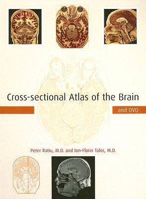Cross-sectional Atlas of the Brain and DVD  by  Peter Ratiu