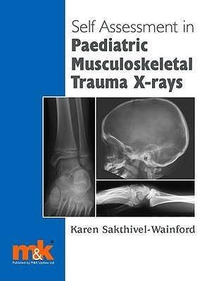 Self Assessment In Paediatric Musculoskeletal Trauma X Rays Karen Sakthivel-Wainford