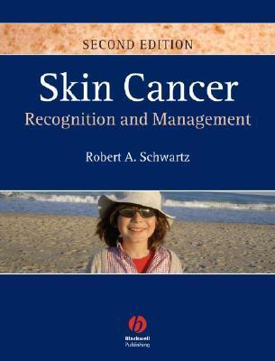 Skin Cancer: Recognition and Management Robert A. Schwartz
