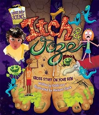 Itch & Ooze: Gross Stuff on Your Skin  by  Kristi Lew
