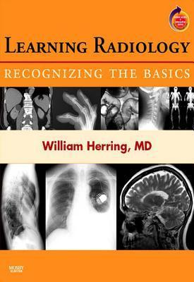 Learning Radiology: Recognizing the Basics: With STUDENT CONSULT Online Access William Herring