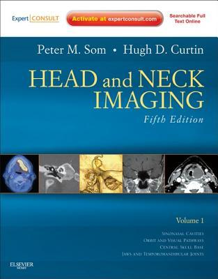 Head And Neck Imaging  by  Peter M. Som
