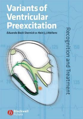 Variants of Ventricular Preexcitation: Recognition and Treatment  by  Eduardo Back Sternick