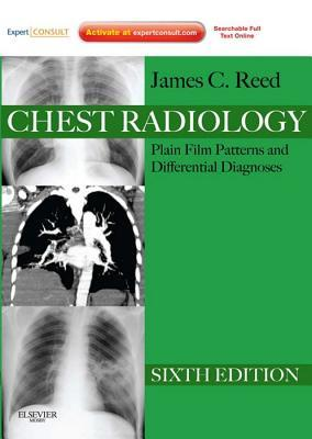 Chest Radiology Plain Film Patterns and Differential Diagnoses,  by  James C. Reed
